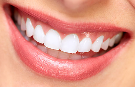 Zoom Whitespeed Tooth Whitening